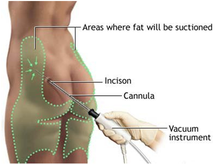 Things you need to know about Liposuction