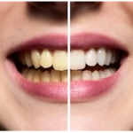prevent tooth discoloration