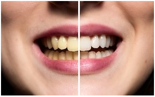 How to prevent tooth discoloration