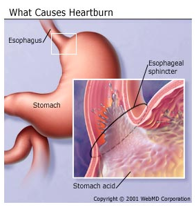 What is Heartburn its symptoms, Causes, and Treatment