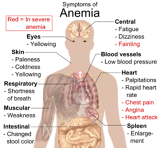 What is anemia,its symptoms causes and how to cure it with food