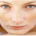 discolored facial skin
