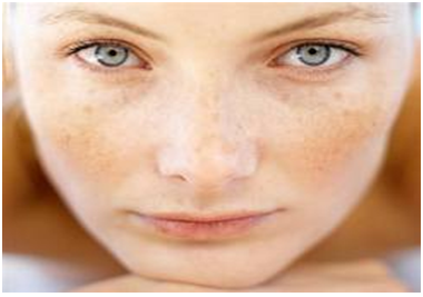 How to Make Discolored Parts of Facial Skin Lighter