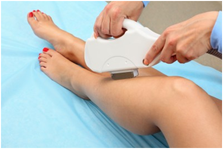 Factors which Impact the Outcome of Laser Hair Removal Procedure