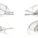 Vaginal tightening surgery