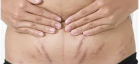 Safer Ways to Get Rid of Stretch Marks