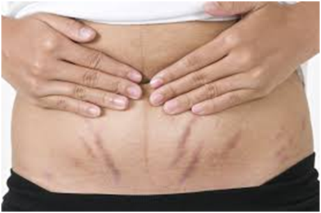 Safer Ways to Get Rid of Stretch Marks | HealthCosmic | A